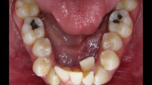 Ortodontia na Mooca: Apinhamento Dental