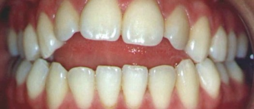 Ortodontia na Mooca: Mordida aberta